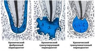 Развитие некоторых видов периодонтита в классификации по Лукомскому