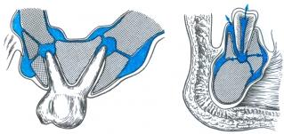 Опасен выход гнойного экссудата в гайморову пазухи или внутрь других тканей