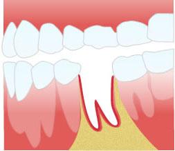 Альвеолит в лунке после удаления зуба