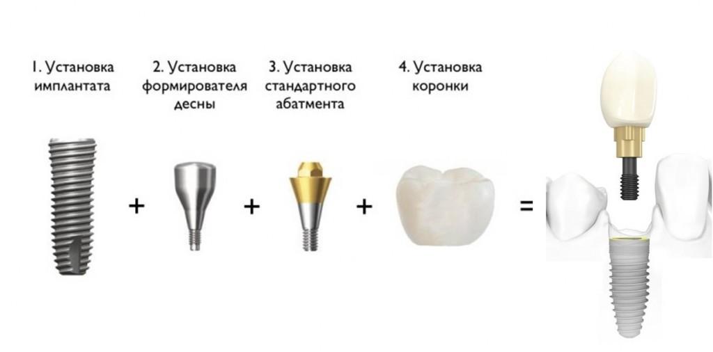 Протезирование на винтовых имплантатах