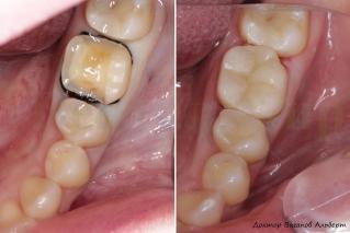 Фотография зуба до и после установки керамической накладки