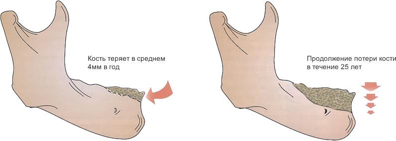 Резорбция костной ткани