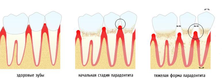 Симптомы, стадии пародонтита
