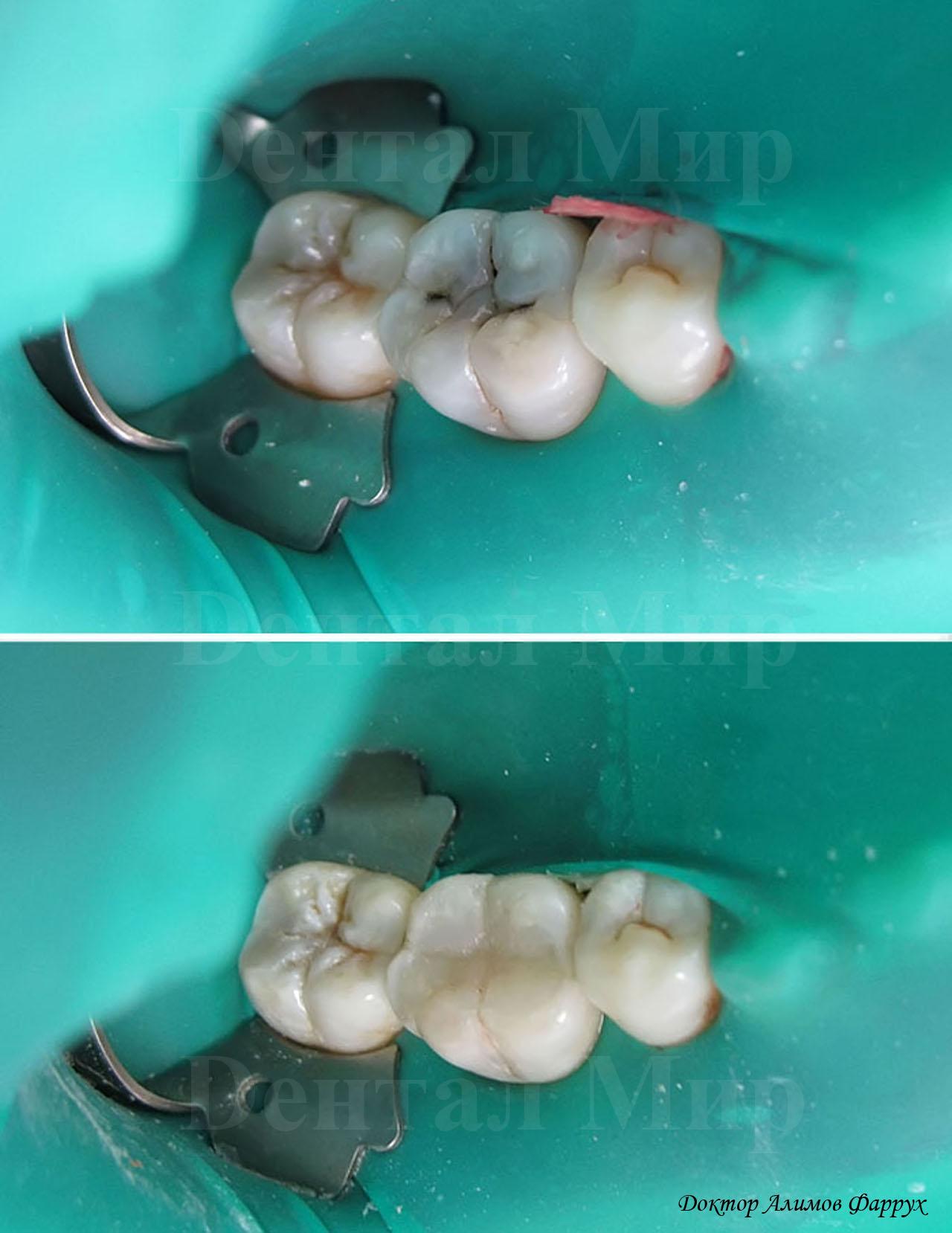 лечение глубокого кариеса (до и после)