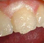 Изоляция зуба