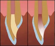 Удаление с оральной поверхности зуба пломбировочного материала